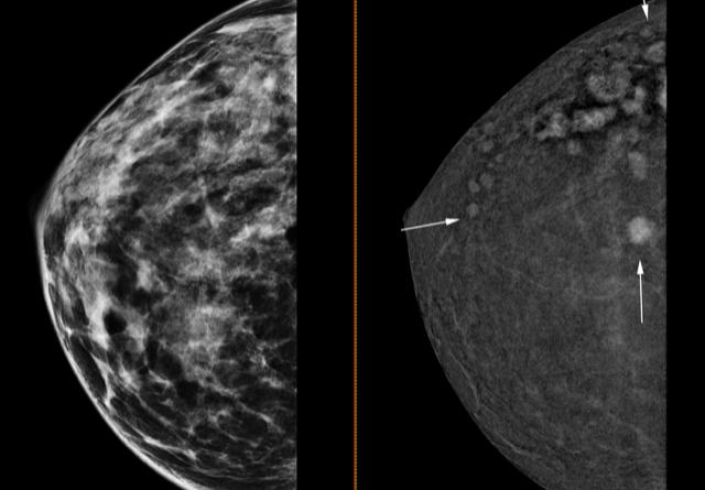 La Unidad de Mama de Ribera Salud pone en marcha la mamografía 3D con contraste que permite la detección de tumores de apenas 4 milímetros